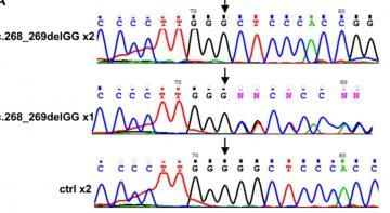 LAT mutation Stepensky article