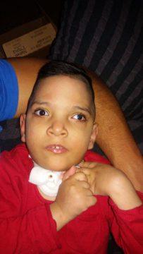 Billal, que está sendo atendido no HPPSCC, sofre de uma doença neurodegeneraiva hereditária.